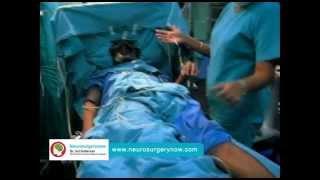 Deep Brain Stimulation Surgery in Hyderabad view on break.com tube online.