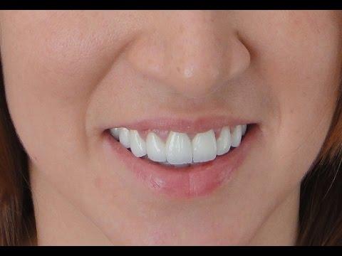Uzun ve kısa diş estetiği uygulamaları (Diş Hekimi Yaşar Nalçacı)