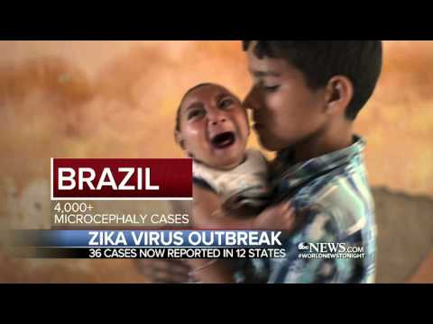 Zika Virus Cases in the United States Include 4 Pregnant Women