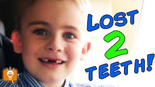 Lost 2 Bloody TOP TEETH! HobbyFrog Lost Two First Upper Baby Teeth HobbyFamily Vlog