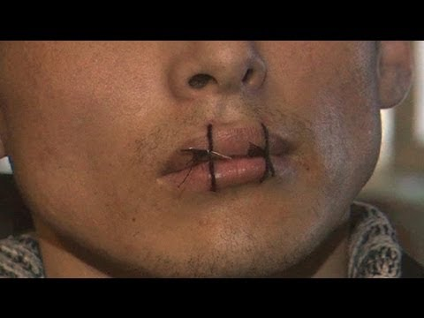 Kyrgyz inmates sew lips together in prison protest