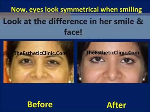 Dark Circles Under Eye Treatment in Mumbai India By Botox & Juvederm Filler Injections