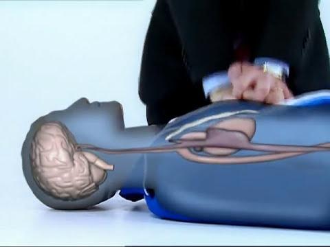 Reanimación Cardio Pulmonar - Solo con tus Manos - TELEFE NOTICIAS