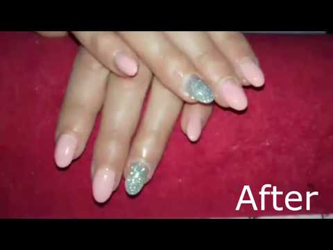 Before and after transformation (IN Nails)