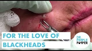 For the LOVE of Blackheads