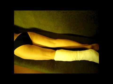 Как снять гипс сапожок в домашних условиях с ноги