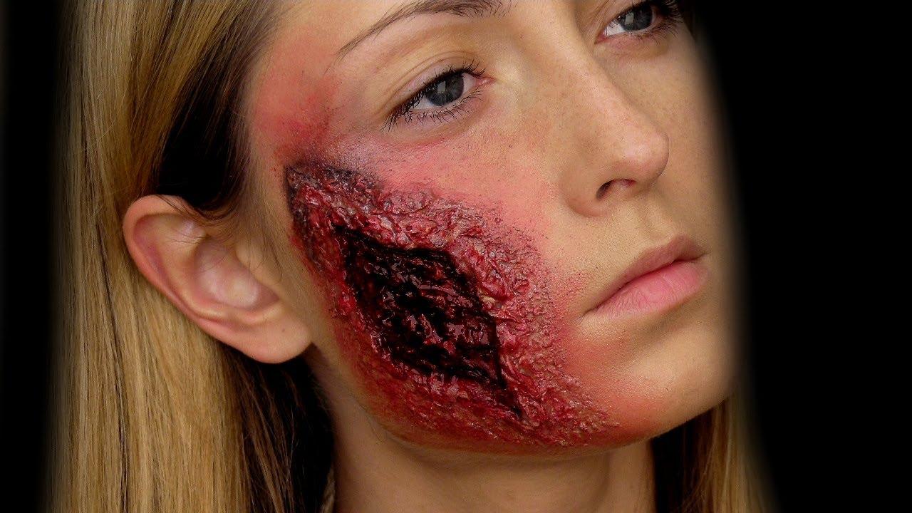 Facial Wounds 84