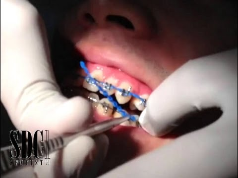 จัดฟันดัดฟัน เชนจัดฟัน เชนดัดฟัน