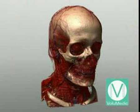 VoluMedic RSNA Video