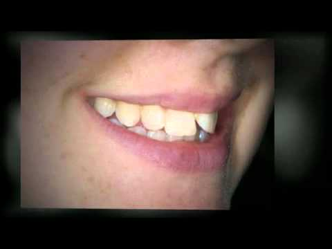 Invisalign orthodontics before and after