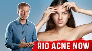 The Hidden Source of Acne: Surprising