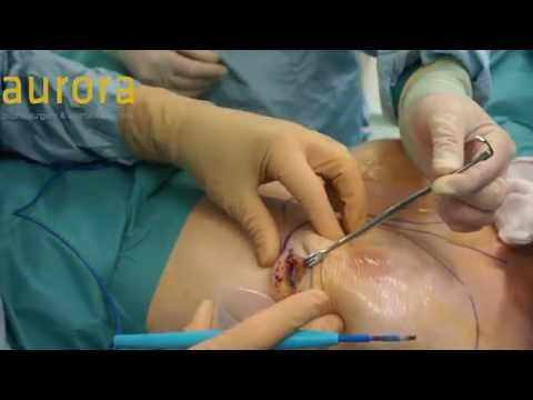 Implant Removal and Replacement - PIP Implant Split