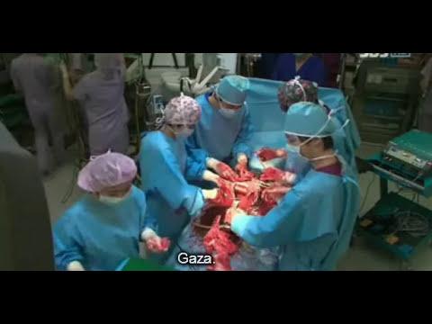 Doctores Obstetricia & Ginecología sub español cap 6(6/6)