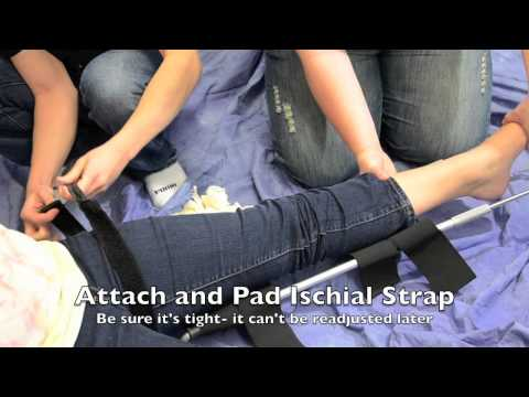 sager traction splint instructions