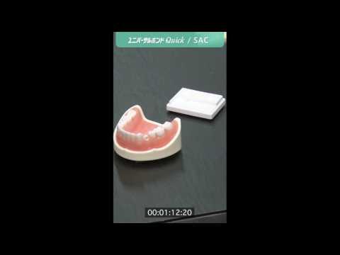 クリアフィル® ユニバーサルボンド Quickを使用したCAD/CAM冠のセメント接着ステップ動画