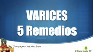 Varices : 5 Remedios para quitar las varices