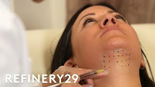Kybella Double Chin Removal Treatment Up Close | Macro Beauty | Refinery29