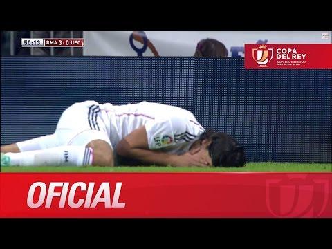 Khedira aturdido por un golpe en la cara. Cambio por Jesé Copa del Rey