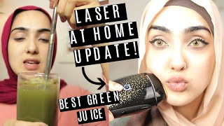 Laser Hair Removal 6 MONTH UPDATE/ BEING PRODUCTIVE AT HOME ~ Immy