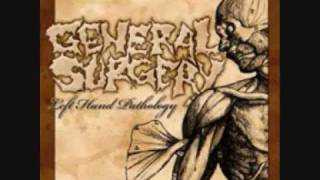 Watch General Surgery Mortuary Wars video