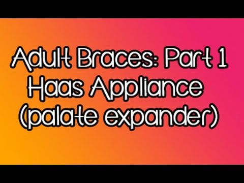 Adult Orthodontics- First Experiences With Palate Expander