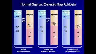 ABG Interpretation: The Anion Gap (Lesson 5)