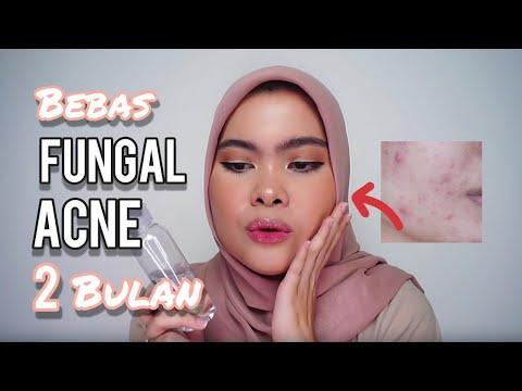 Skincare Routine: Jerawat dan Fungal Acne