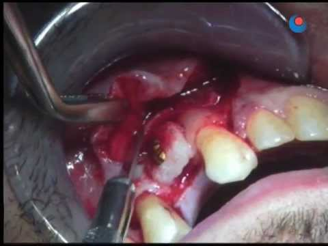 Bone graft (edentulous area) - 5 - Closing flap.mov
