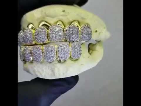 Watching video Bustdown diamond prong set grillz done by aria & co jewelry