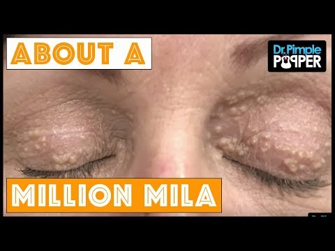 One in a Million Milia...
