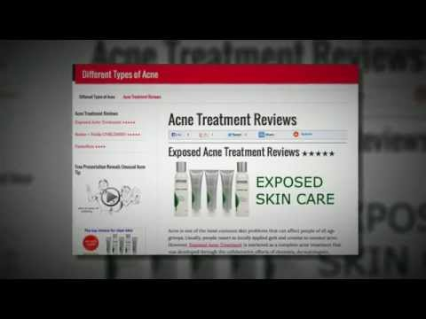 Acne Treatment Reviews [On Best Brands]