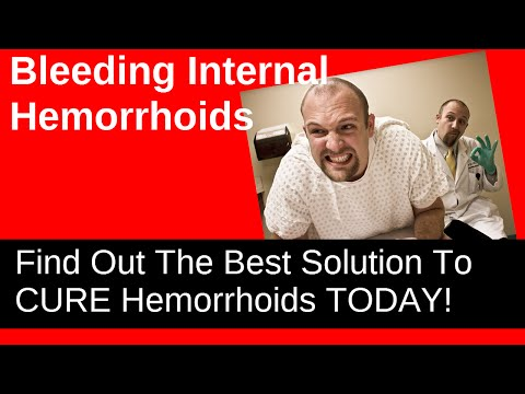 Bleeding Internal Hemorrhoids - Discover A Short Video About What They Are