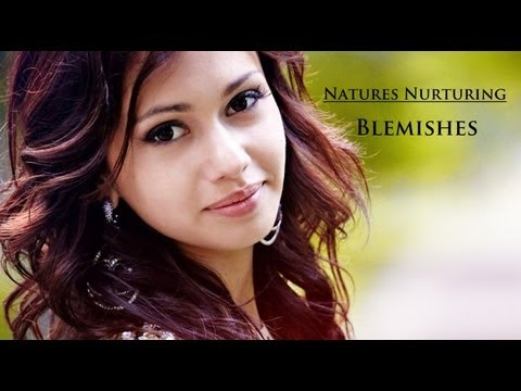 Blemishes | Home Remedies | Natures Nurturing