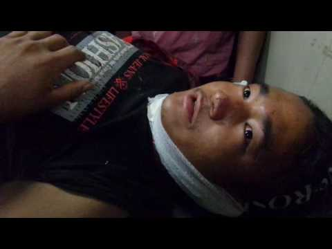 Dhading Bus Accident   patient at Teaching hospital   Video