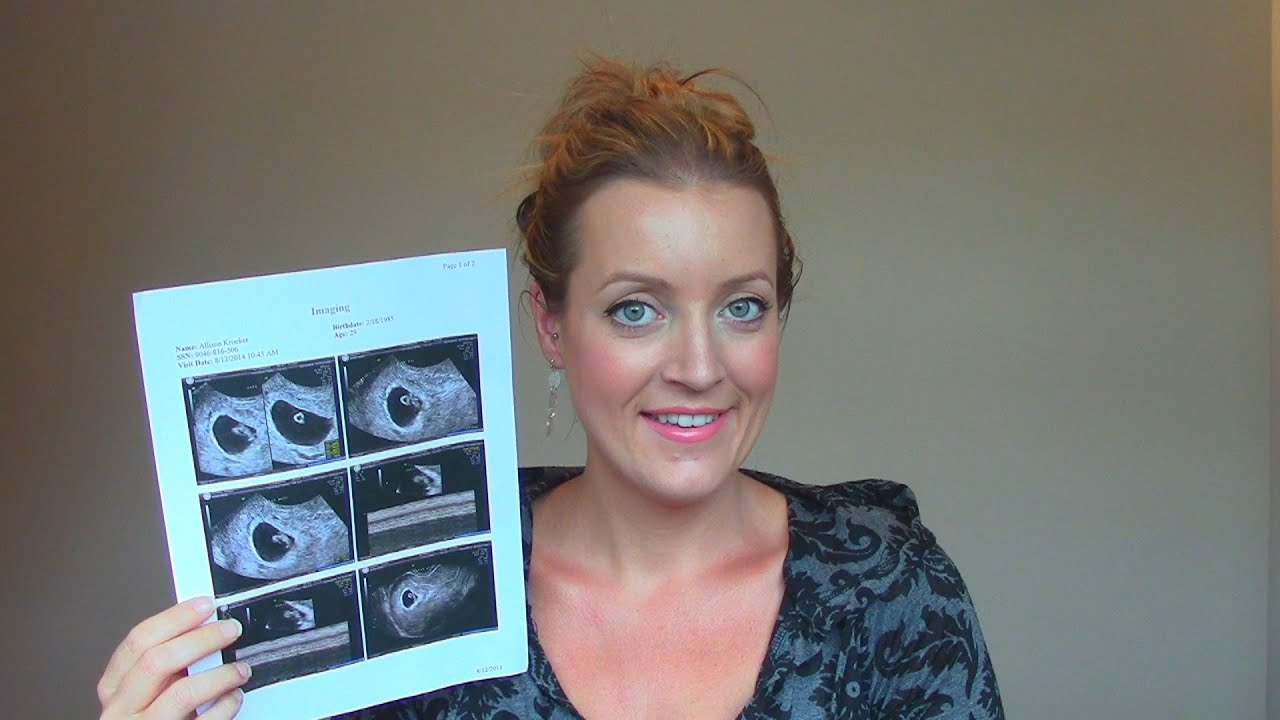 7 weeks pregnant update   ultrasound exercise amp belly