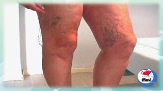 Remedios caseros y naturales para las varices y arañitas en las piernas - Venas varicosas