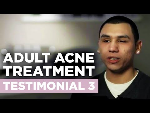 Envision Acne & Skin Care Center | New Jersey Acne Treatment Center Testimonial 3