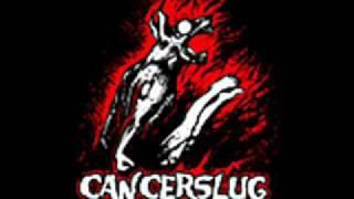 Watch Cancerslug Fuck You video