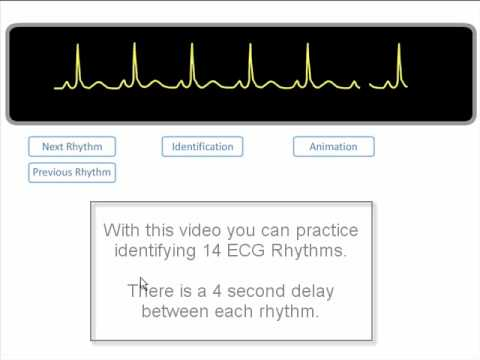 ECG Rhythm Review. of 14 common rhythms