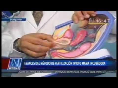 Método INVO:Tratamiento de Fertilidad Asistida en SISOL Surquillo/ N Noticias 21-11-12