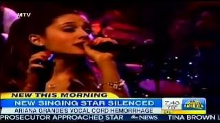 Ariana Grande Vocal Cord Hemorrhage cancels Shows and Threatens her Singing Career
