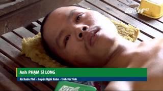 (VTC14)_Chàng trai tật nguyền tình nguyện... hiến đầu cho y học