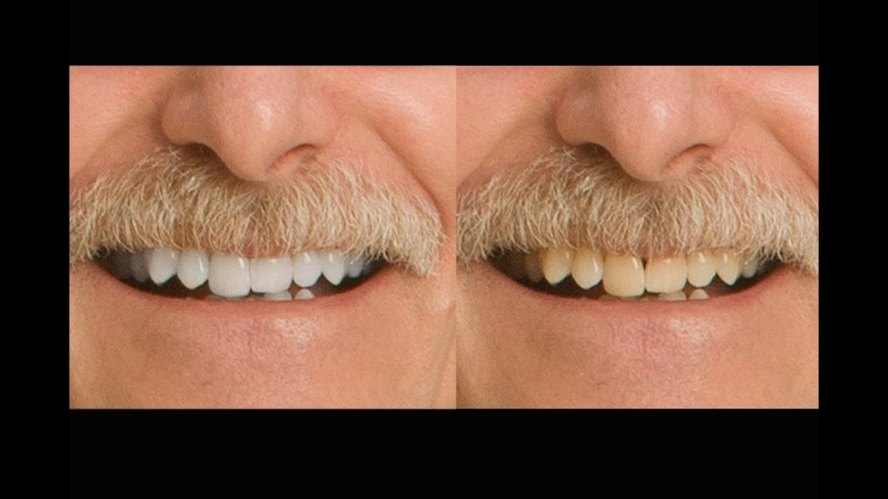 Zoom Teeth Whitening Glasgow  Using Banana Peel To