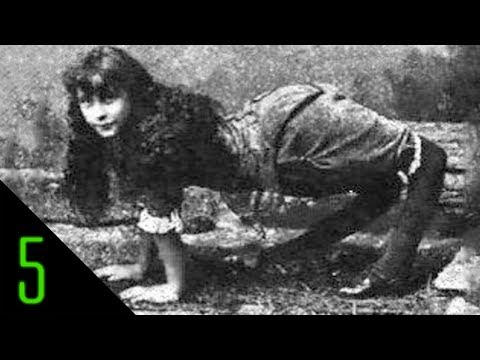 5 Most Incredible Sideshow Freaks