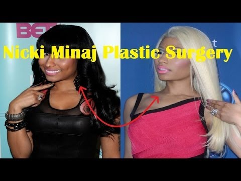 Nicki Minaj Plastic Surgery Before and After