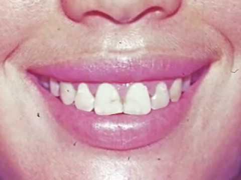 Sonrisa Gingival   Gummy Smile