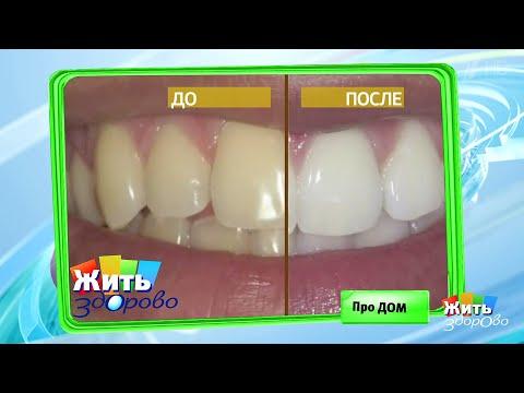 Жить здорово! Зубы: как сэкономить на лечении.(15.06.2018)