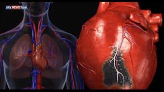 ارتفاع ضغط الدم يهدد البالغين عربيا
