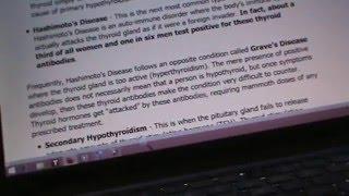 CRITICAL HEALTH NEWS: FUKU WILL FCK UR THYROID FIX! THE PROBLEM