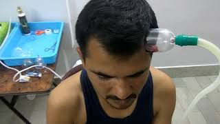 Hair fall/ Regrowth treatment result by Hijama / Cupping therapy